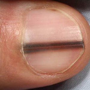 Dents fingernails tiny in 10 Things