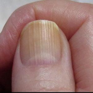 In tiny fingernails dents Slide show: